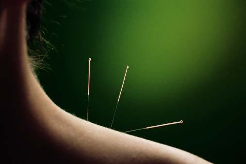 acupuncture a paris