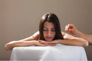 Acupuncteur Paris